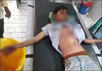 ટીવીનાં રિમોટમાં અચાનક વિસ્ફોટ: 9 વર્ષના બાળકને ગંભીર ઇજા  :લોહીલુહાણ હાલતમાં હોસ્પિટલ ખસેડાયો